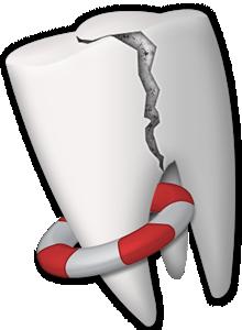 Diş yaralanmalarında ne yapılmalı?