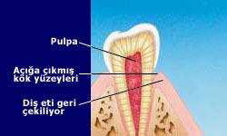 Diş Hassasiyeti Nedir?
