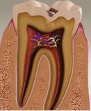 dis_curuk_karsiyaka_dental