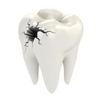 Diş çürüğü nedir?