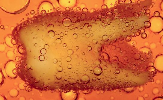 Gazlı içecekler dişlerde sorun yaratır mı?