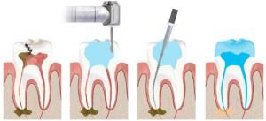 Karşıyaka Diş Kanal Tedavisi
