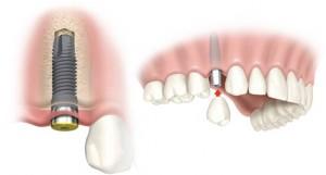 karsiyaka izmir implant