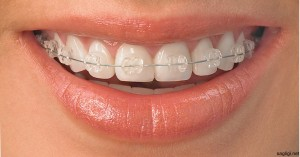 ortodonti-karsiyaka